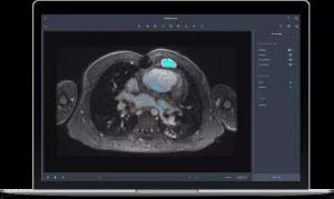 首个FDA批准的深度学习医疗级应用云平台